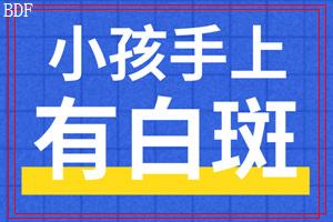 东莞虎门治疗白癜风3个妙招助力尽快恢复!